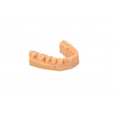 Dreve drukowany model 3D (stereolitografowy) - model ortodontyczny (dół)