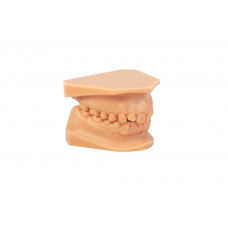 Dreve drukowany model 3D (stereolitografowy) - model ortodontyczny (góra+dół) z podstawą