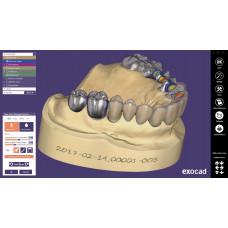 Exocad Basic je software pro návrh protetických prací