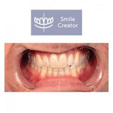 Exocad  Smile Creator Module